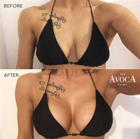 video of breast implant surgery jpg 1019x1016