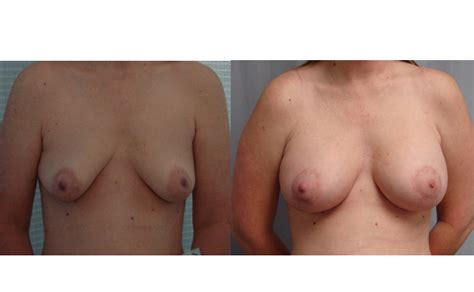 Plastic surgery in virginia beach jpg 725x447