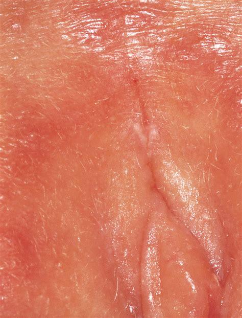 I feel cuts on vagina i cannot get a diagnosis jpg 590x775