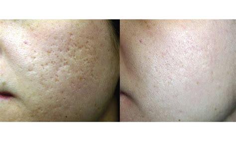 Find acne facials near me spafinder jpg 1000x600